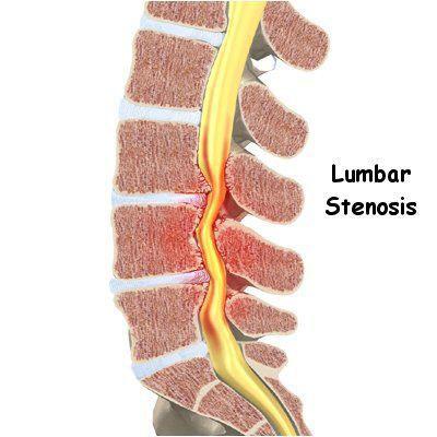 椎管狭窄示意图